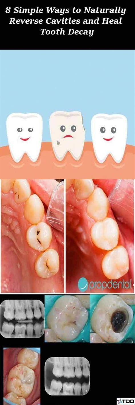 how # #to # #heal # #a # #cavity # #without # #fillings