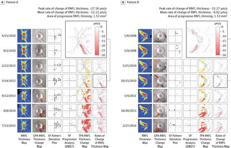 Topography of Rates of Retinal Nerve Fiber Layer Thinning
