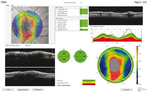 Optical coherence tomography measurements of the optic
