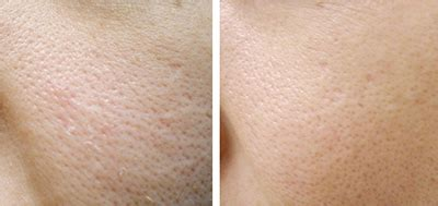 Derma Roller Microneedling For Hair Loss Treatment   Max