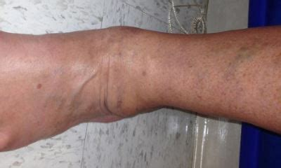 Warning signs of blood clot in leg pictures, symptoms of