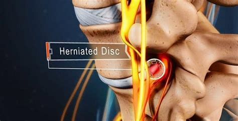 Tips for Lumbar Herniated Disc Pain Relief